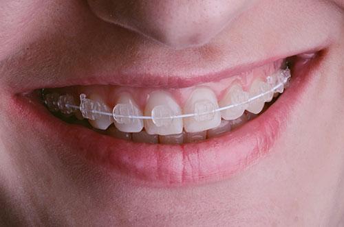 Ceramic braces improve smiles