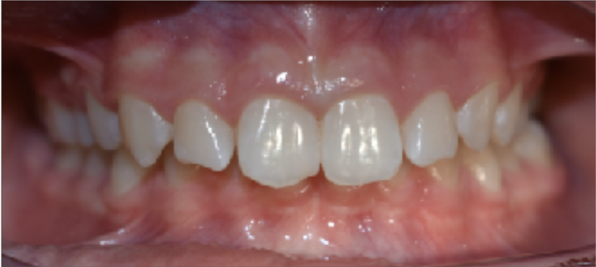 A chipped tooth identified by Oasis Orthodontics.