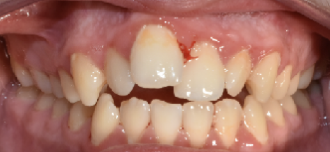 Gingivitis casing pain and discomfort in the mouth.