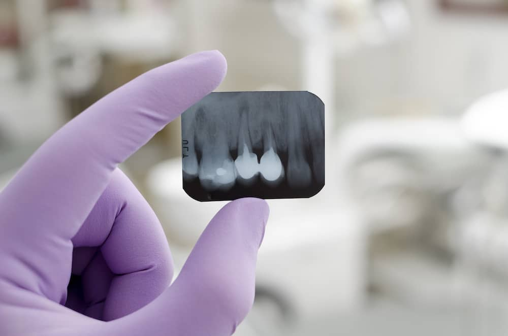 An image for an enodontist to decide if they want to proceed with root canal.