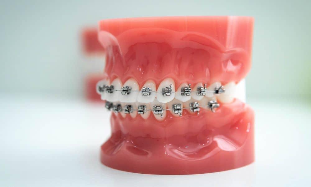 Teeth model with braces.